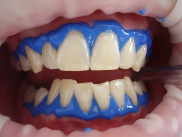 stomatologia estetyczna wola